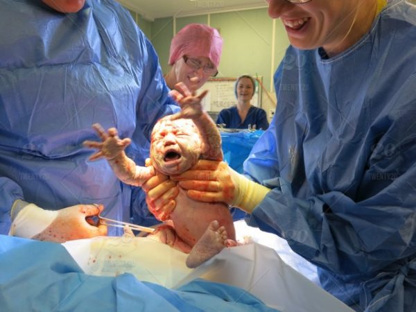 natural-birth-giving-after-c-section